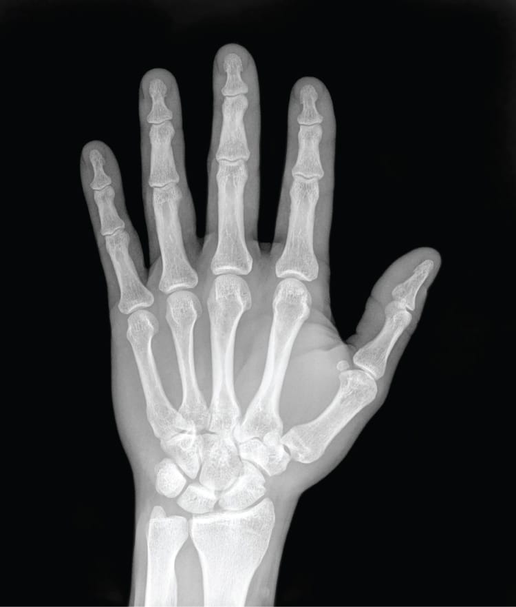 Рентген - диагностика травм пальцев руки