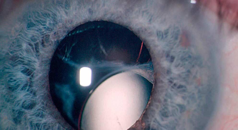Полная эктопия глаза