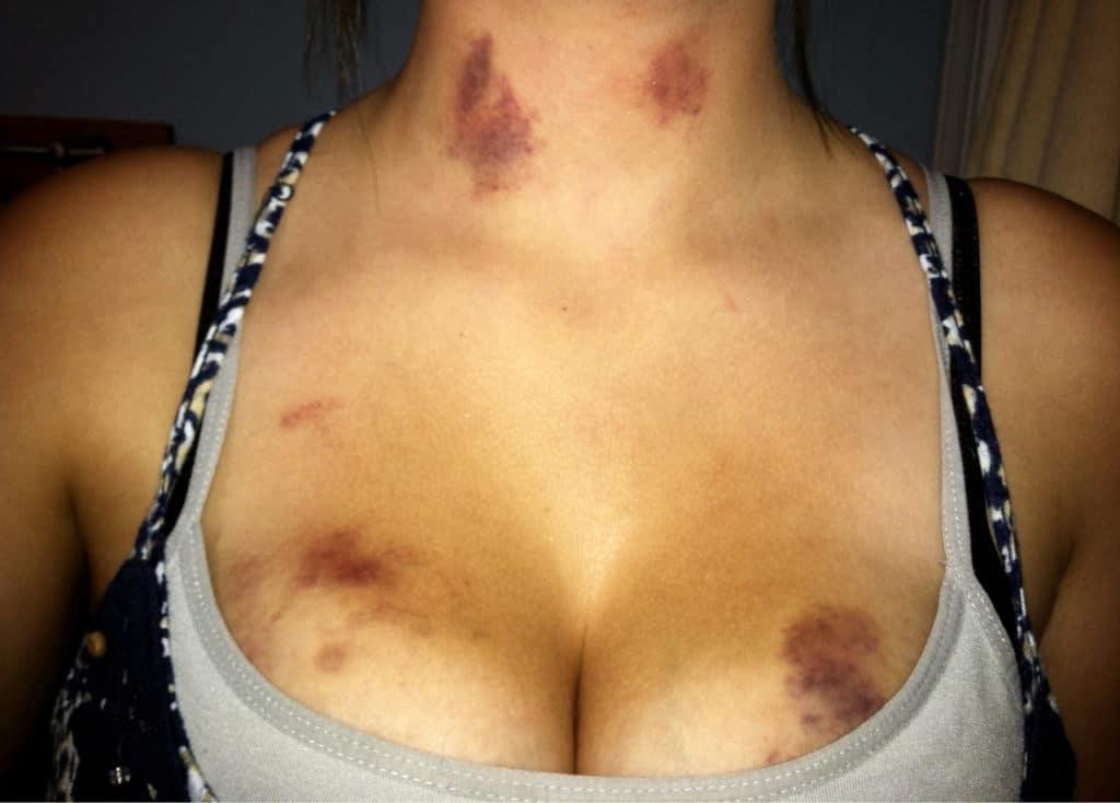 Синяки на грудной клетке