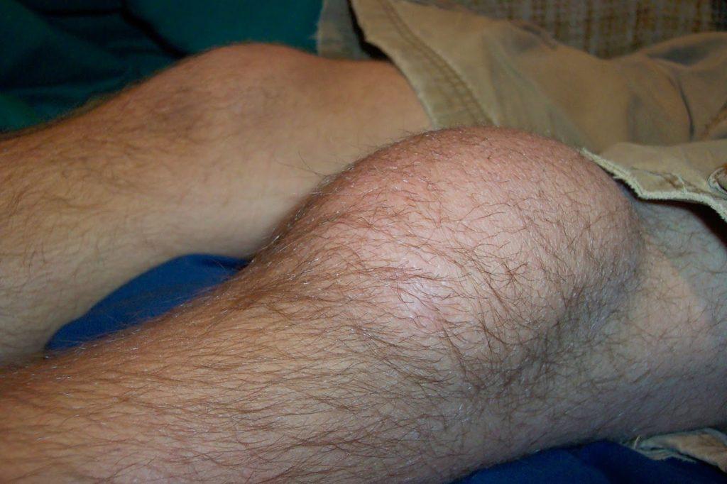 Отёк коленного сустава