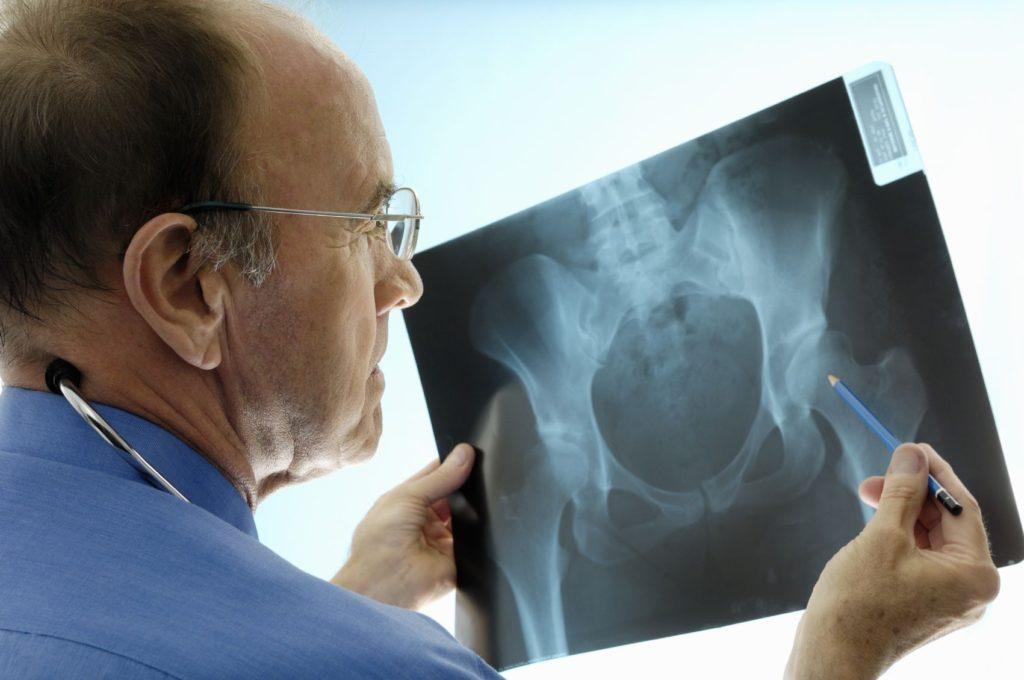 Рентгенологическое исследование тазобедренного сустава