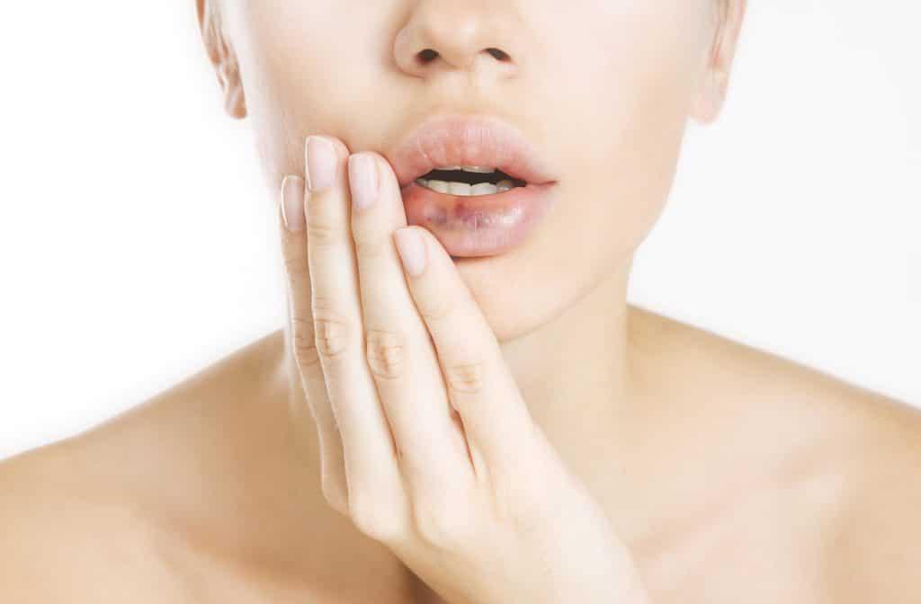 пшиб губы у взрослого
