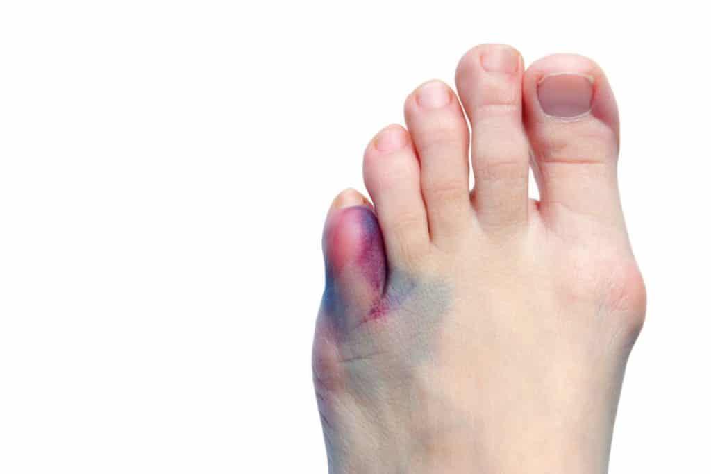 Ушиб мизинца на ноге сколько заживает