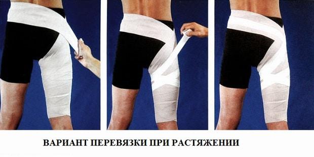 Растяжение четырехглавой мышцы бедра