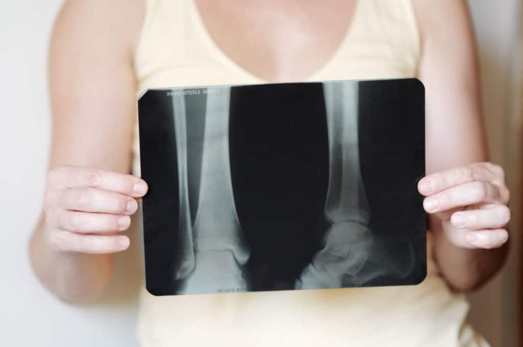 С целью дифференциации различных видов травм больным с растяжением назначают рентген