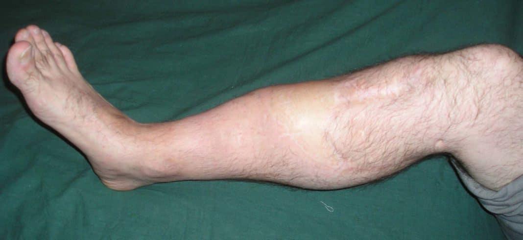 Ложный сустав после перелома
