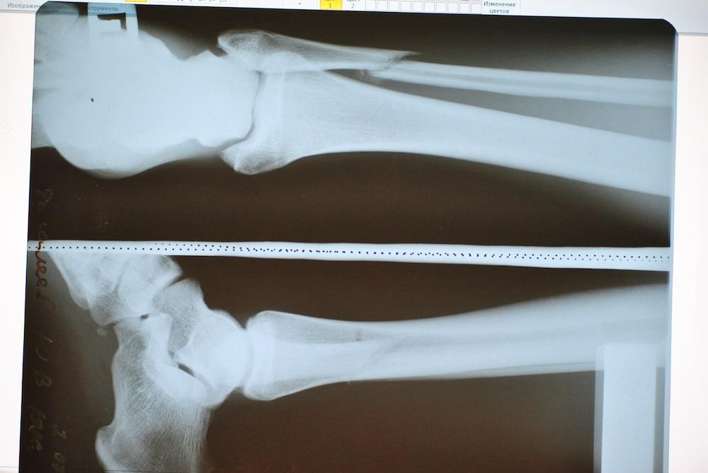 Перелом малой берцовой кости