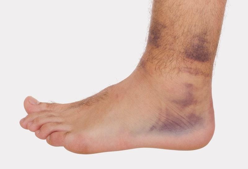 растяжение связок +на ноге голеностоп