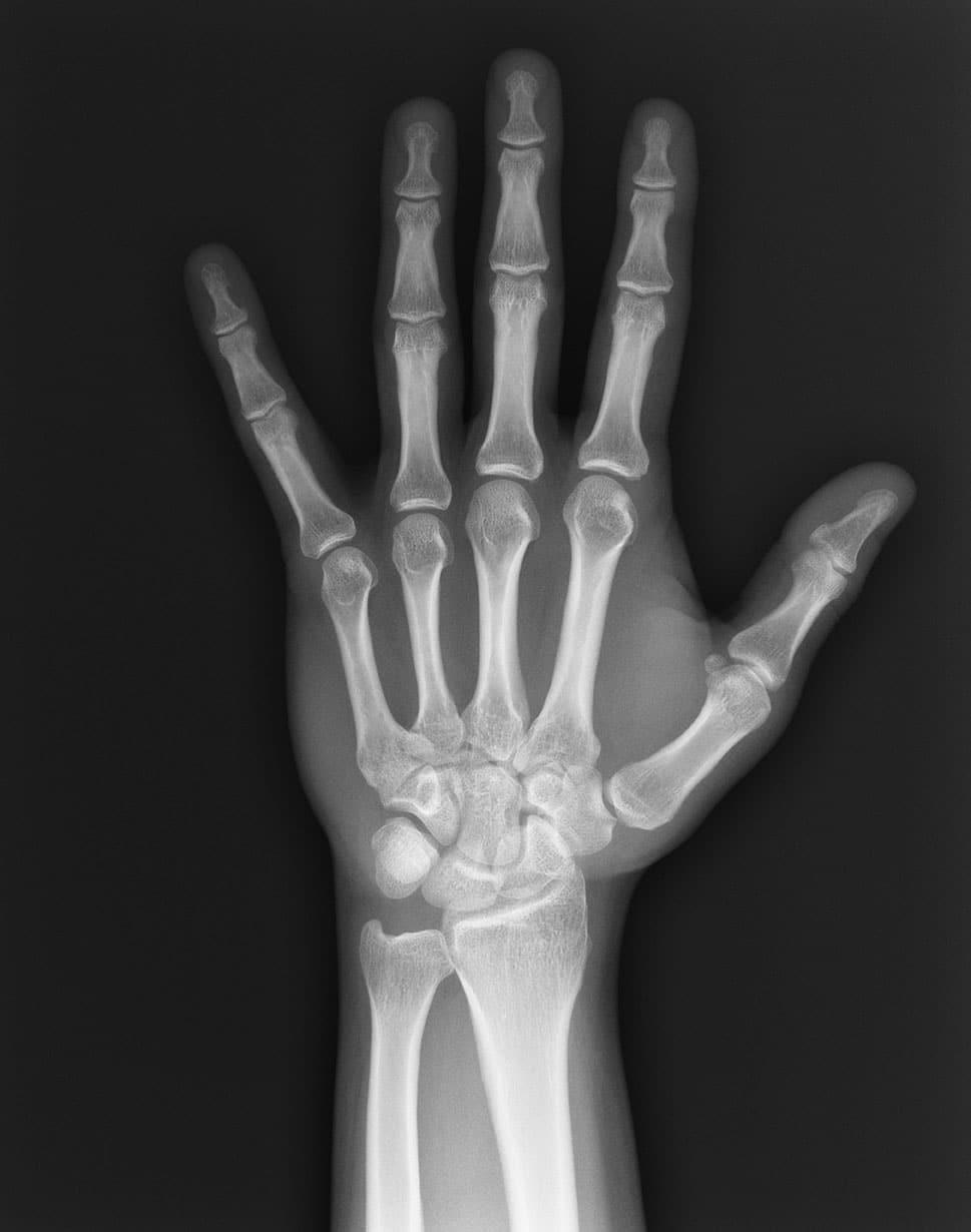 открытый перелом руки