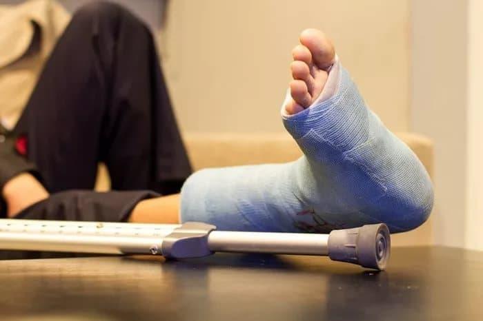Гипс при переломе кубовидной кости стопы