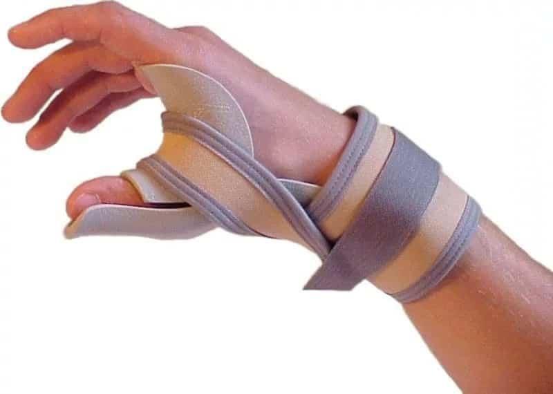 Растяжение пальцев руки