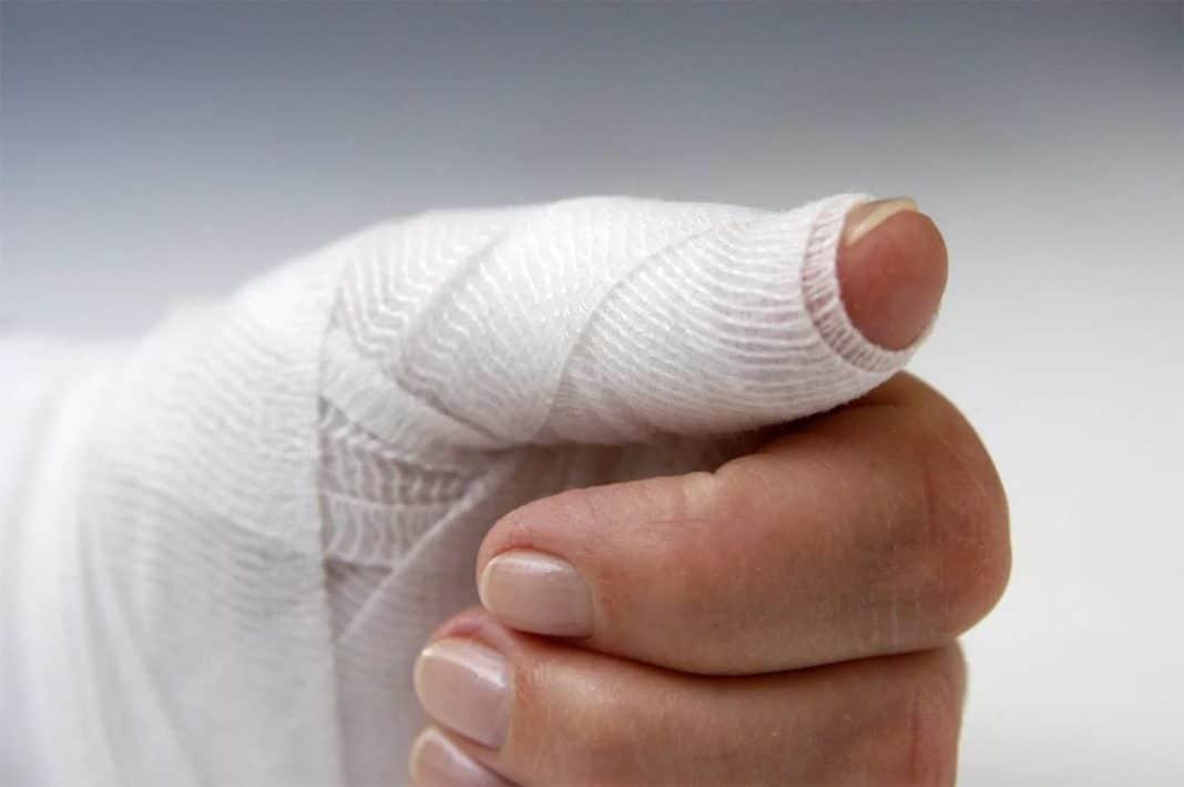 Разрыв сухожилия на пальце руки лечение народными средствами