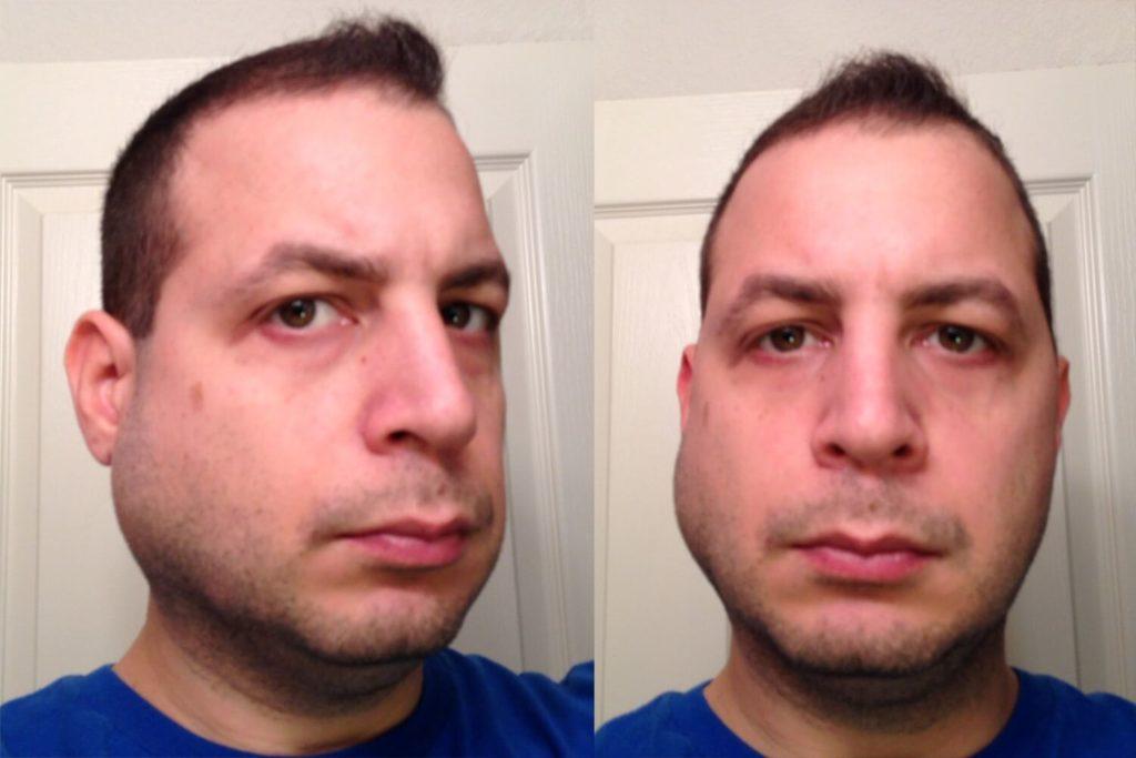 Опухшие области на лице