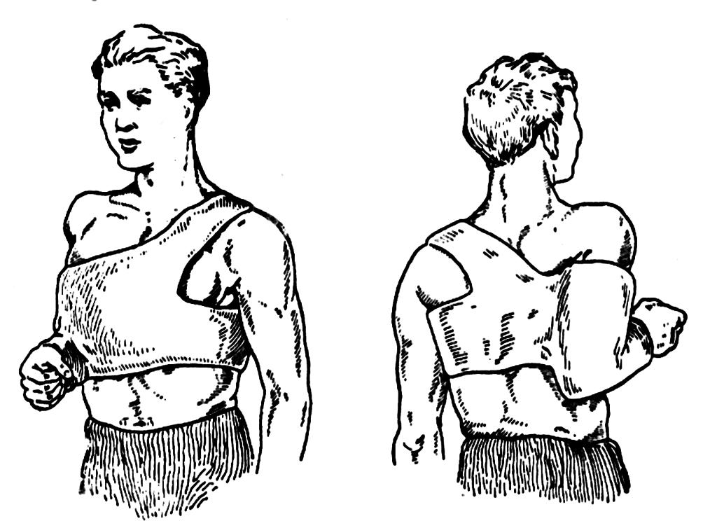 Как сделать повязку при переломе ключицы