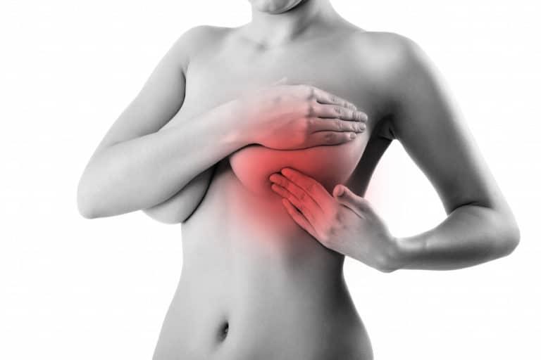 Ушиб молочных желез - лечение и последствия