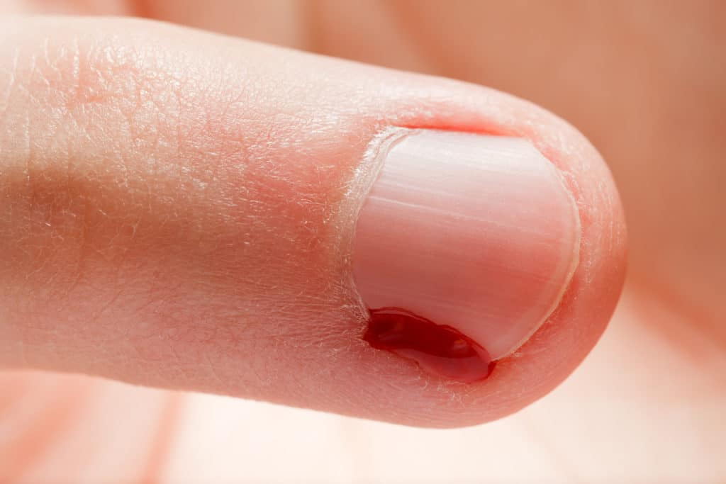 Ушиб ногтя на пальцах руки
