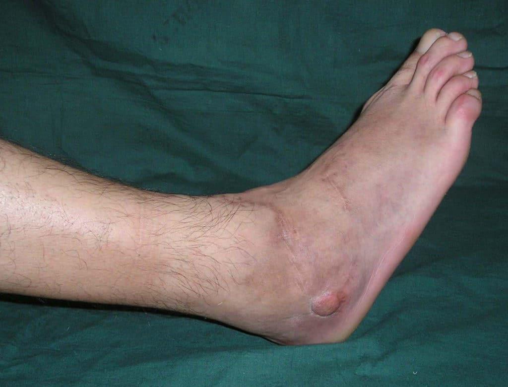 Закрытый перелом ноги