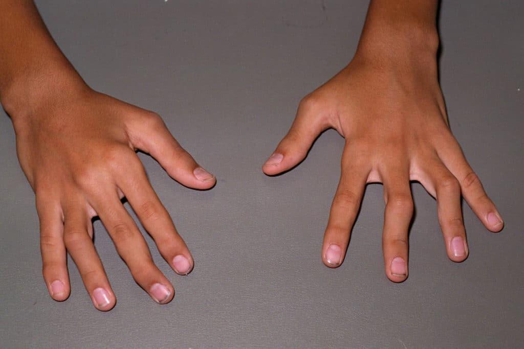 головка лучевой кости - ревматоидный артрит