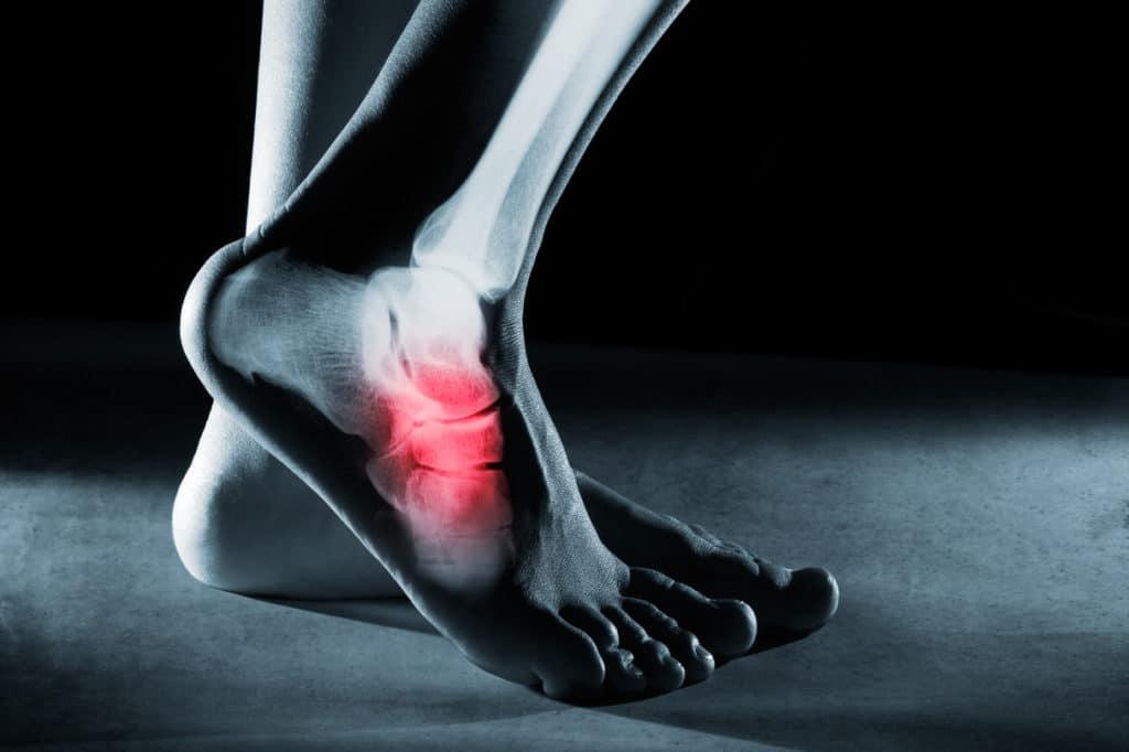 Вывих ноги или стопы
