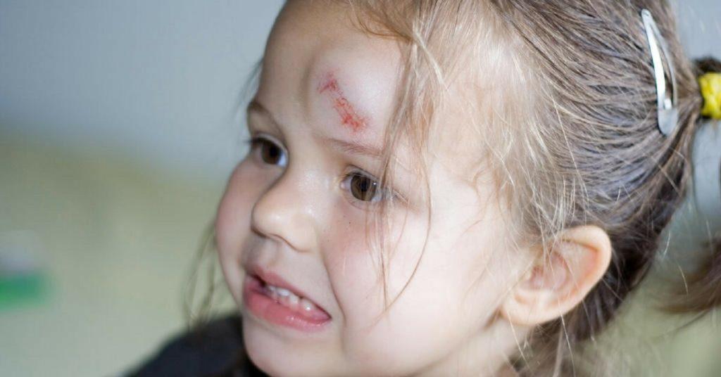 Ребенок ударился головой шишка что делать