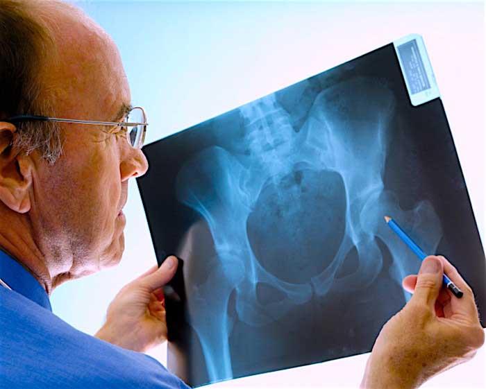 диагностика перелома