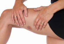 гематома на ноге