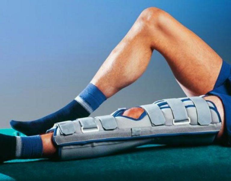 Причины и лечение перелома надколенника коленной чашечки
