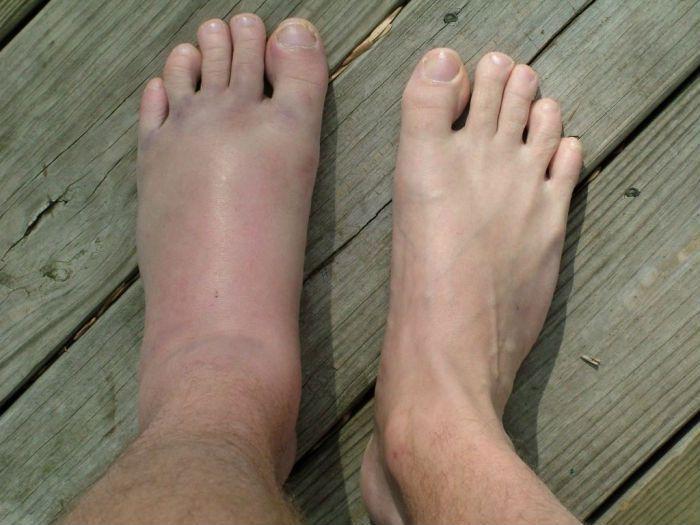 Ушиб стопы - симптомы