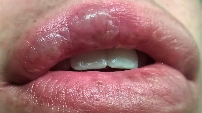 Ожог губы: разновидности, степени ожогов и лечение