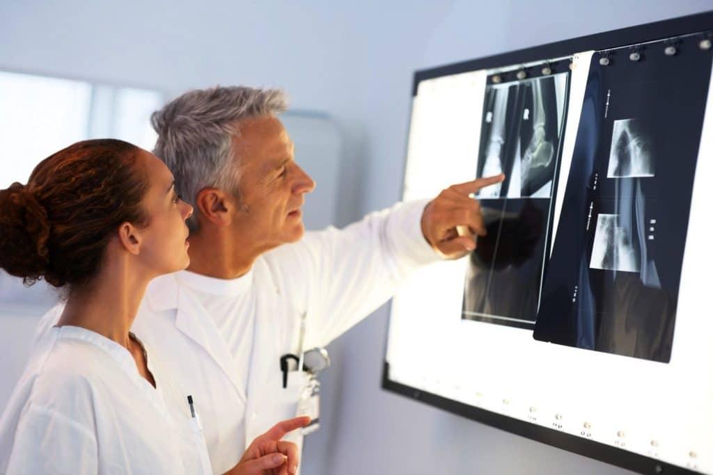 Изображение - Повязка при растяжении плечевого сустава diagnostika-rentgen-1024x683