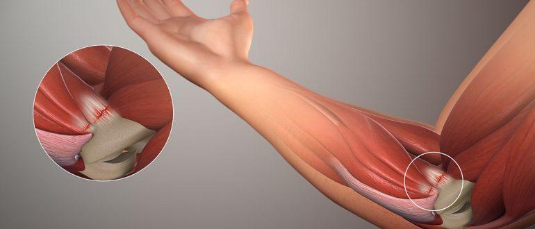 Как лечить растяжение связок локтя руки