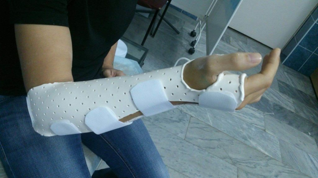 Как срастаются кости после перелома у взрослых