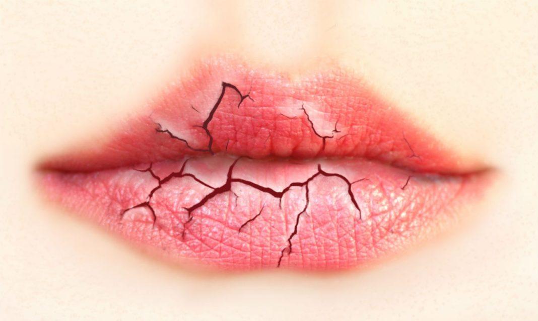 Нужно ли зашивать губу при рассечении
