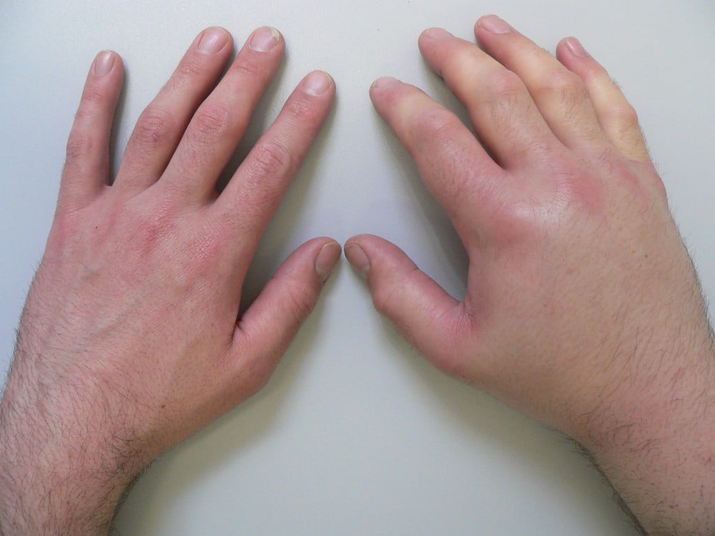 Отек при переломе руки