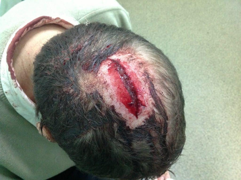 Открытая рана на голове
