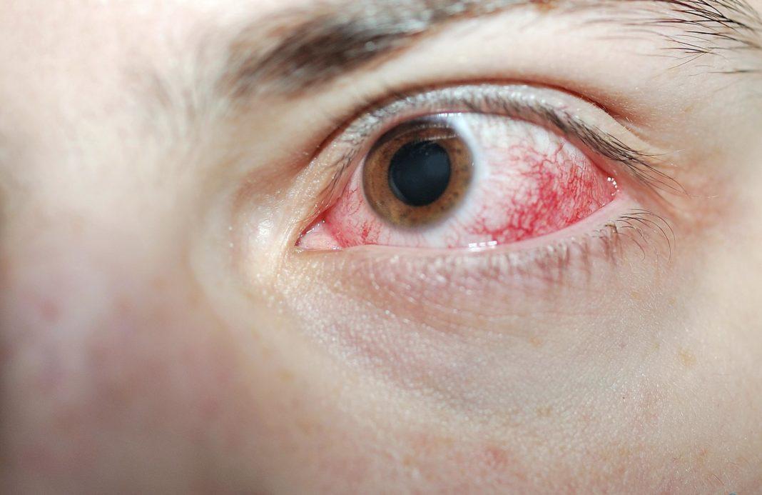 Ожог глаз сваркой