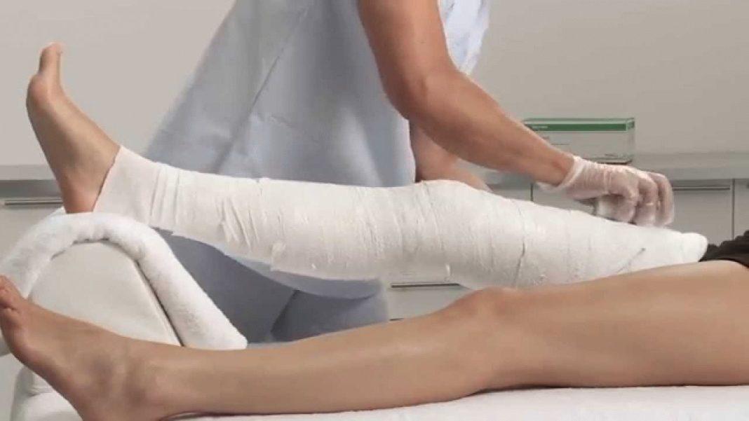 Перелом большеберцовой кости что это такое Симптомы и лечение
