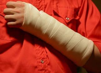 Что делать при переломе предплечья: как оказать первую помощь, методы лечения и реабилитации