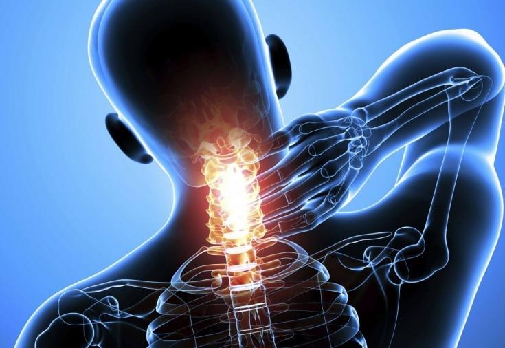 диагностировать перелом шейных позвоночников