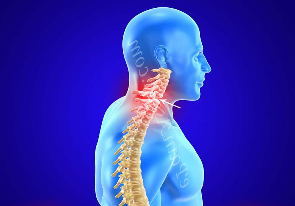 лечение и диагностика подвывиха шейного позвонка