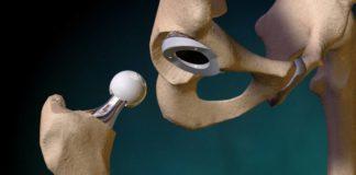 Вывих эндопротеза: всегда ли нужна операция?