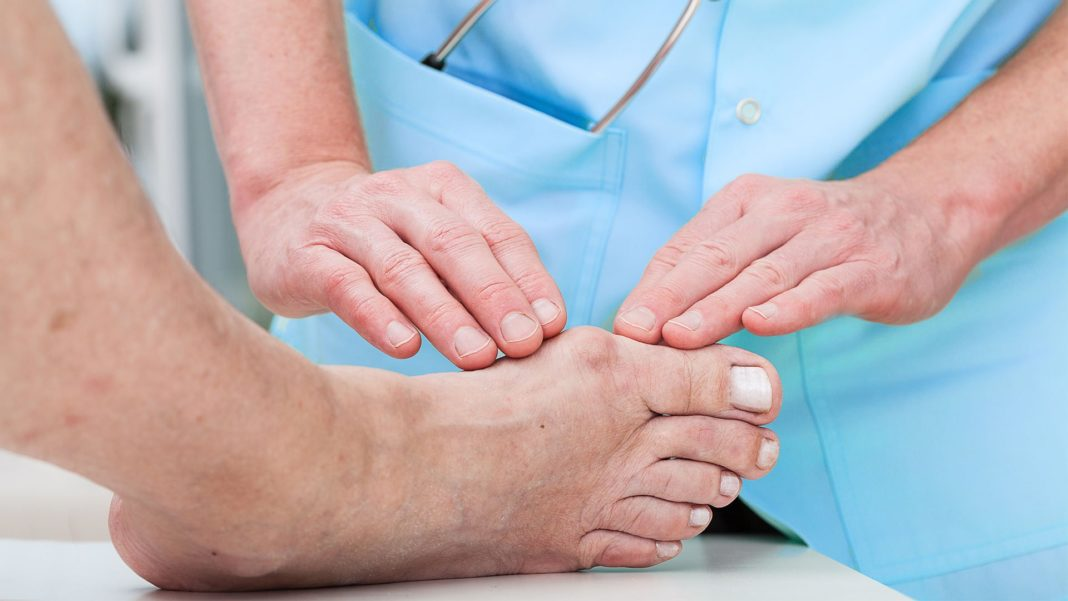 Вывих фаланги пальца на руке или ноге
