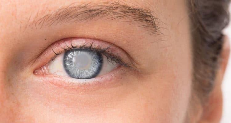 Глаукома: причины, симптомы, диагностика и лечение
