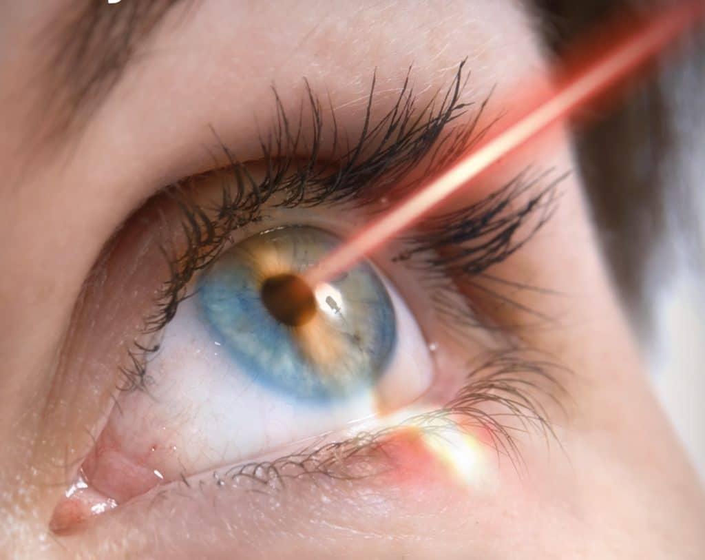 Глаукома и лазерная коррекция