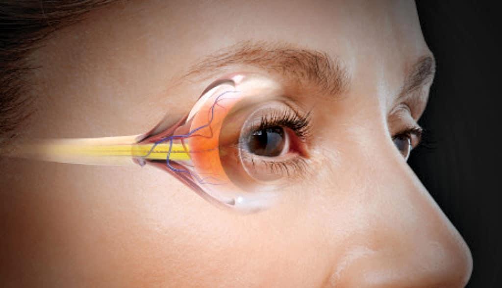 Глаукома и лечение